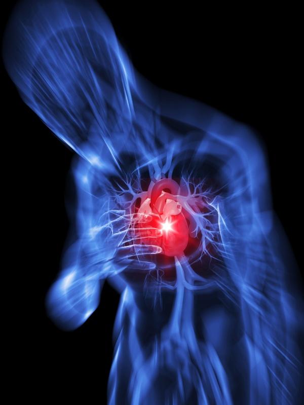 herzschmerzen / herzinfarkt