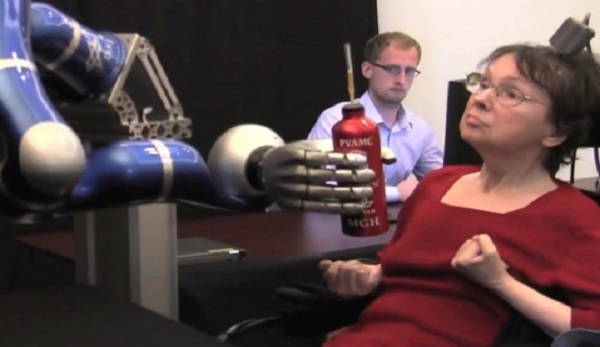 brain-controlled-prosthetic1