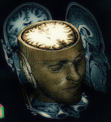 brain_scan-457x500