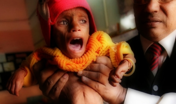 Stupro e mutilazione genitale su bimba di 5 anni