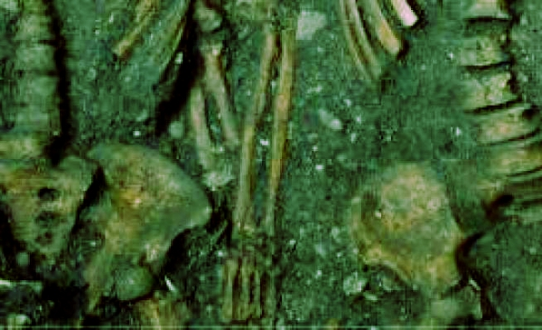 scheletri-mano-nella-mano-romania-tuttacronaca
