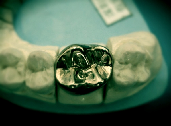 dentiera-anziani-tuttacronaca