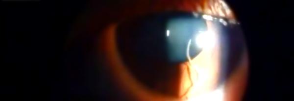 Loa Loa Filariasis-verme-nell'occhio-tuttacronaca