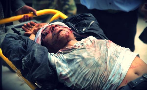 siria-attentato-tuttacronaca