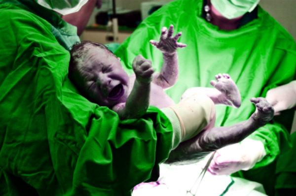 operazione-neonato-attaccato-a-cordone-ombelicale-tuttacronaca