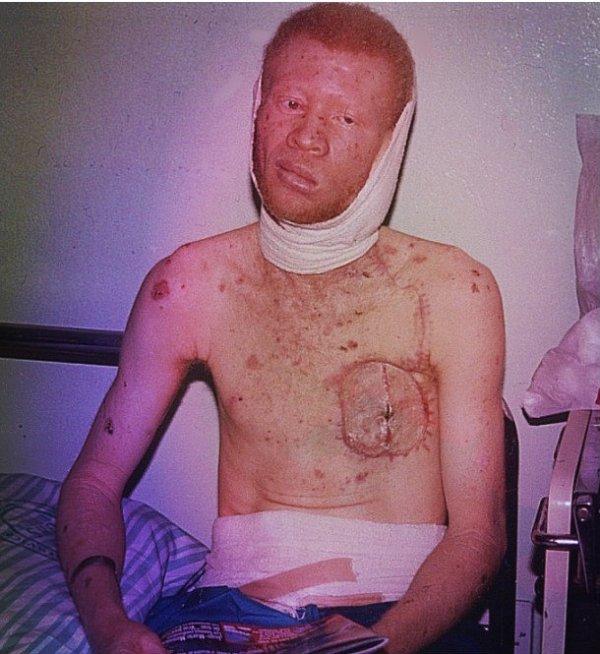 Il dramma degli albini d'Africa, facili prede degli sciamani