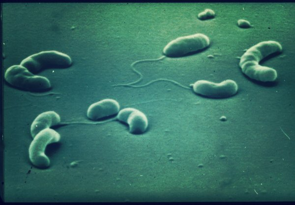 campylobacter-latte-torino-tuttacronaca