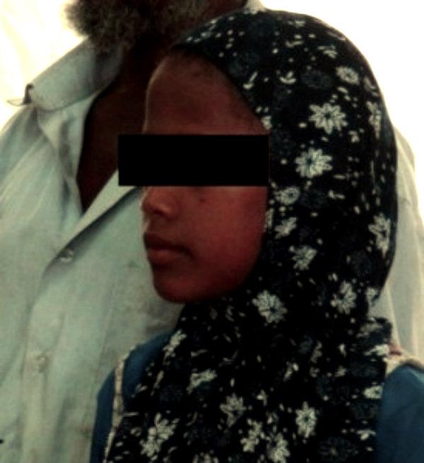 bimba-sposa-yemen-rawan-tuttacronaca