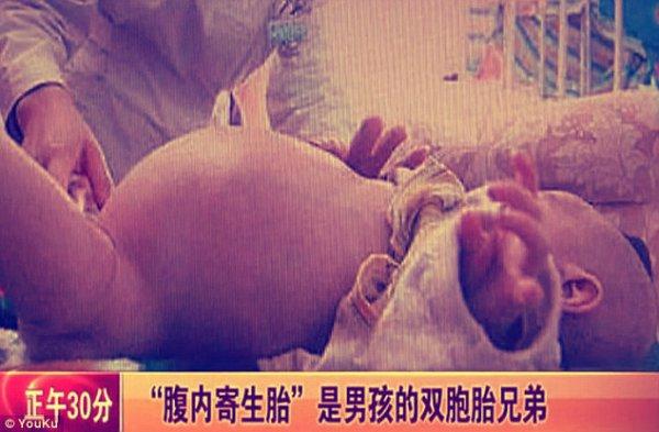 bambino-partorisce-gemello-tuttacronaca