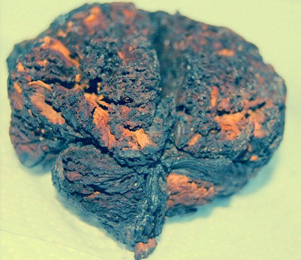 cervello bollito 4000 anni turchia-tuttacronaca