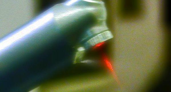 laser-carie-denti-tuttacronaca