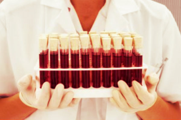 blood-tuttacronaca-sangue-artificiale