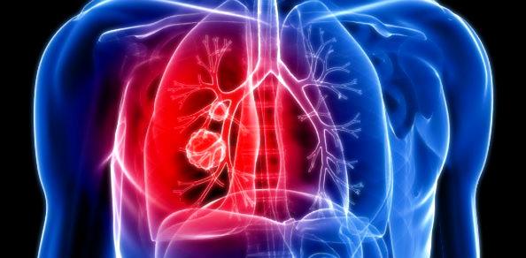polmoni-tuttacronaca-odori