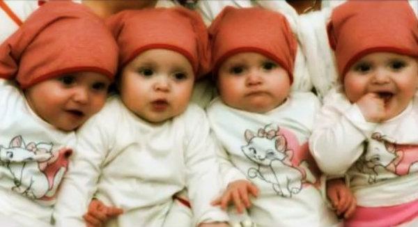 quattro-gemelle-monozigoti-tuttacronaca